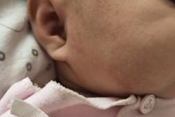 宝宝脸上长湿疹怎么办?我给孩子抹了芊芙霜没几天就好彻底了