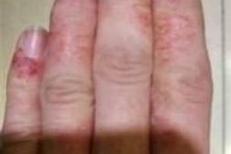 湿疹不能吃的食物清单 长湿疹不能吃什么